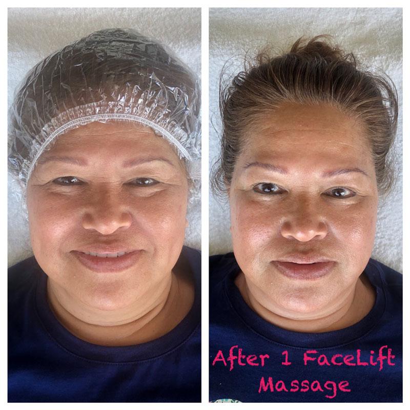 before after Emy natural facelift massage