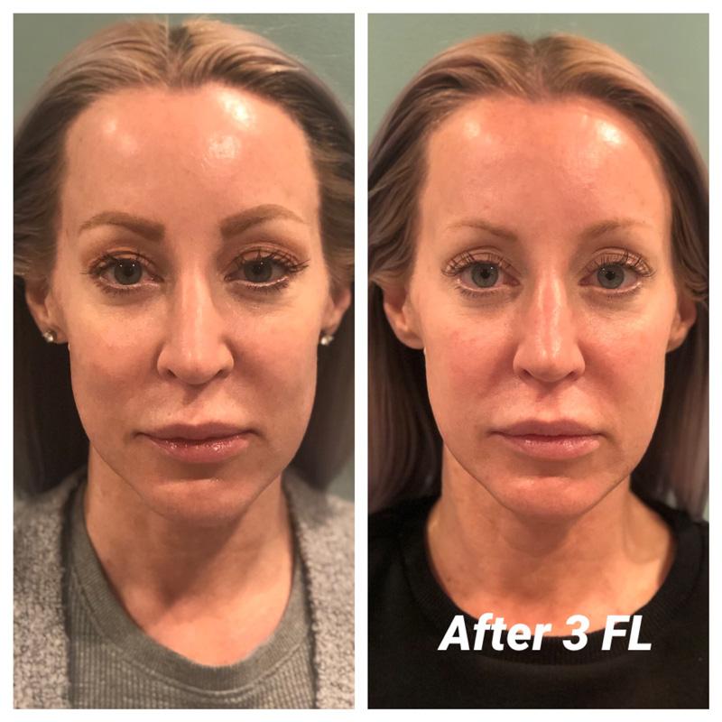 before after Katie natural facelift massage