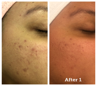 collagen-before-after-2