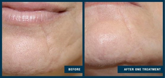 collagen-induction-therapy-before-after-1