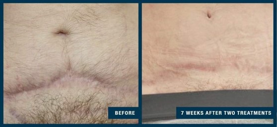 collagen-induction-therapy-before-after-3