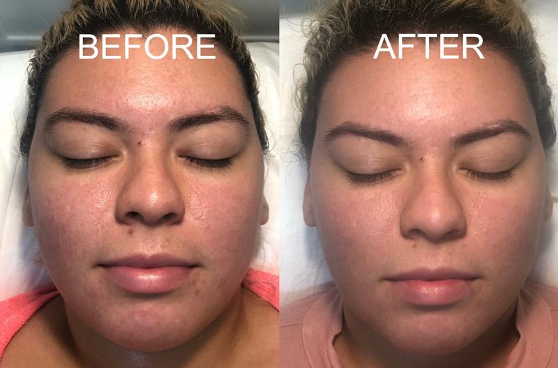 laser rejuvenation before after woman