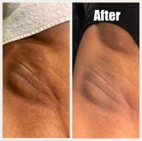 lightening-treatment-before-after