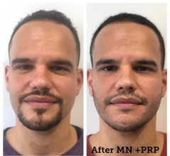 mens face treatment before after