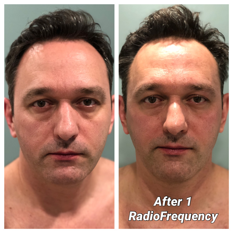 radio frequency before after Nic