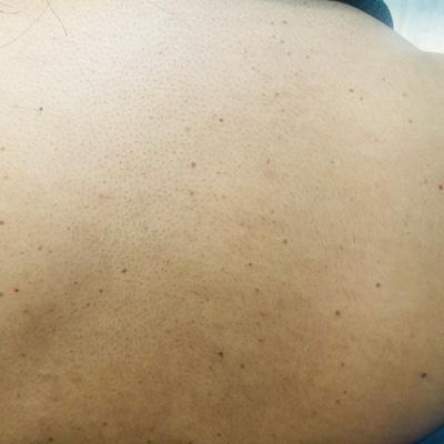 skin irregularities back