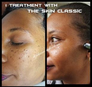 skin irregularities before after woman