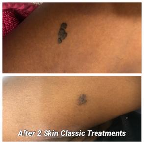skin-irregularities-treatment-before-after-woman-