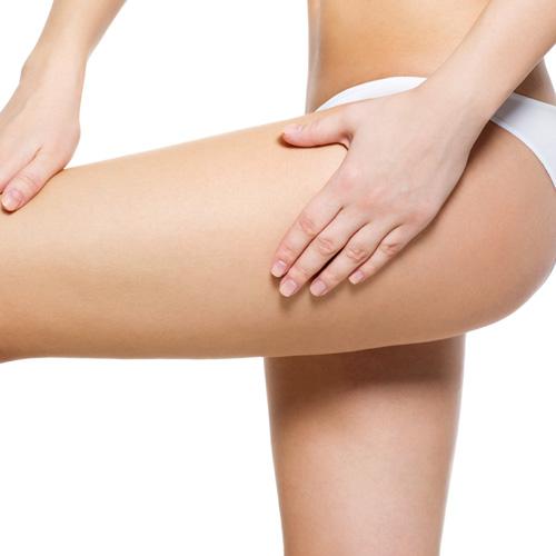velashape treatment leg